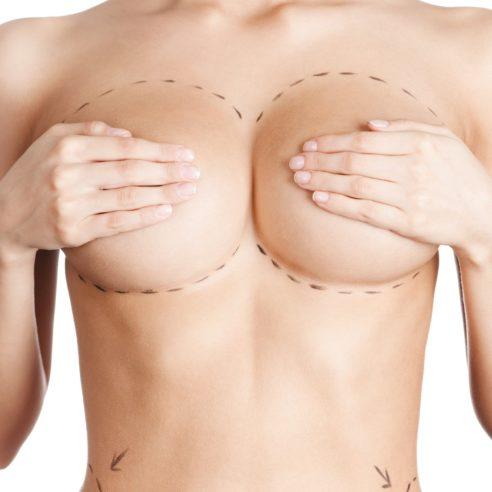 Chirurgie seins rabat maroc
